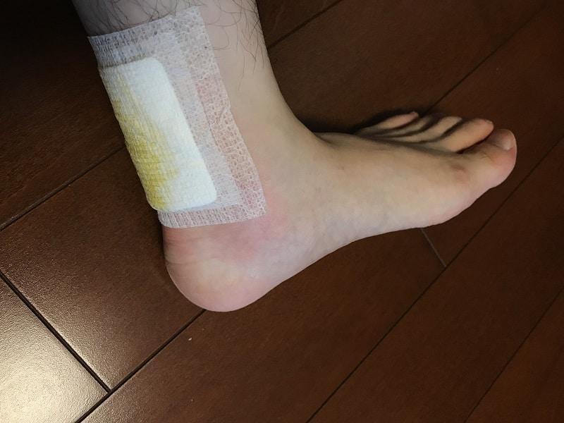 アキレス腱炎を糾励根で治療中