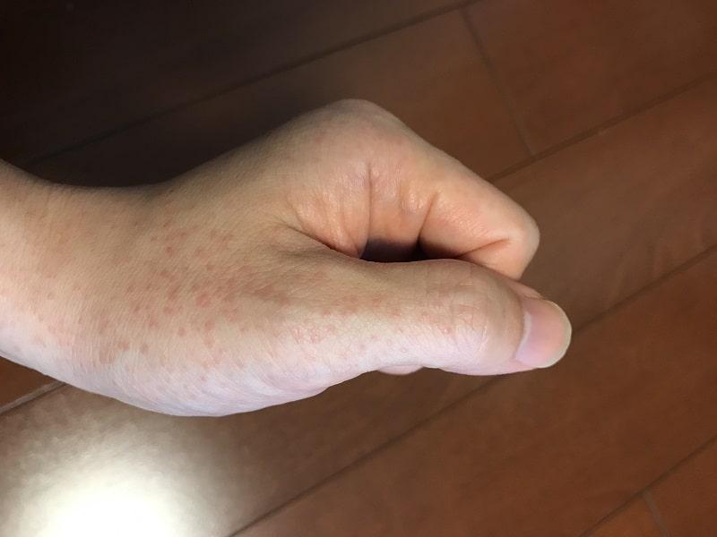 左手の蕁麻疹